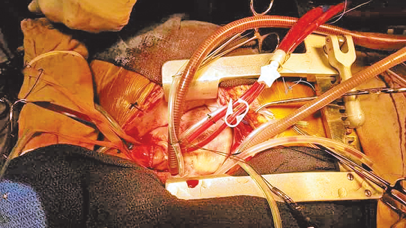 Sri Lanka's first ever heart transplant completed