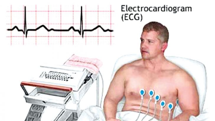 Performing  an ECG