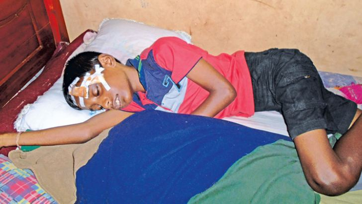 Eleven-year-old S. P. Akisha Irushan was hit by a stone thrown during a clash of two rival groups where he ended up injuring his forehead as a result.